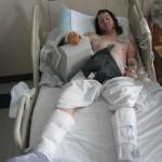 Skater bandaged up in hospital bed