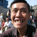 asian man with missing teeth